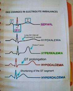 ECG changing in electrolyte imbalances . ECG changing in electrolyte imbalances . Medical Surgical Nursing, Cardiac Nursing, Pharmacology Nursing, Pathophysiology Nursing, Rn School, Medical School, Medical Humor, Medical Assistant, Medical Care