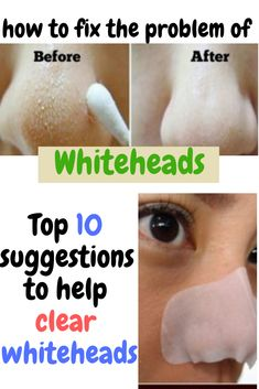 Whiteheads are small white bumps caused by clogged skin pores. Thus, they are similar to blackheads. However, unlike blackheads they appear white or yellow in color. Diy Skin Care, Skin Care Tips, Deep Blackheads, Skin Logo, Dark Spots On Skin, Acne Spots, Hair Mask For Growth, Skin Care Routine Steps, Exfoliate Face