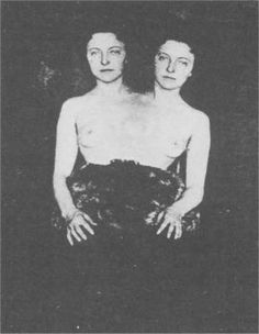 Nature Rarities and Human Oddities - Famous Freaks of the Show/femme double Vintage Photographs, Vintage Photos, Vintage Circus, Vintage Burlesque, Vintage Twins, Steampunk Circus, Conjoined Twins, Human Oddities, Unusual Facts