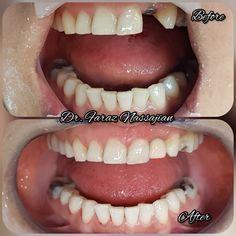 1 implantat mit 1 Zirkonkeramikkrone
