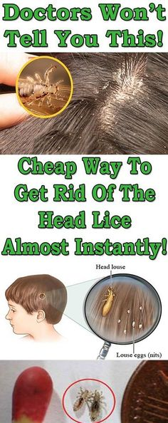 Ways to get Rid Of Brown Spots on Face Lice Treatmemt, Hair Lice, Black Spots On Face, Brown Spots On Skin, Dark Spots, Baby Massage, How To Treat Lice, How To Prevent Lice, Lice Shampoo