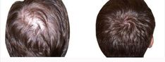 LUCKYS PHARMA from Indore, Madhya Pradesh (India) is a manufacturer, wholesaler and supplier of Minoxidil Solution at reasonable price. Hair Loss, Counter, Long Hair Styles, People, Beauty, Losing Hair, Long Hairstyle, Hair Falling Out, Long Haircuts