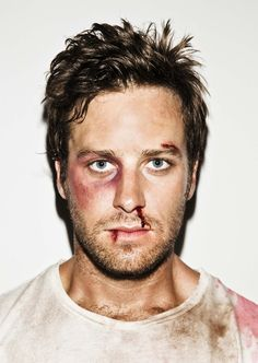 Fight Club meets Armie Hammer. PERFECTION.