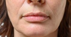 Rimedio naturale per combattere le rughe della pelle intorno alle labbra