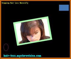 Stopping Hair Loss Naturally 152144 - Hair Loss Cure!