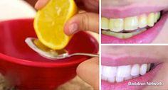 Mira como blanquear tus dientes en solo dos minutos con este remedio casero | HSalud