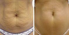Elimina en 7 días la flacidez abdominal. (Receta Natural) | Salud con Remedios