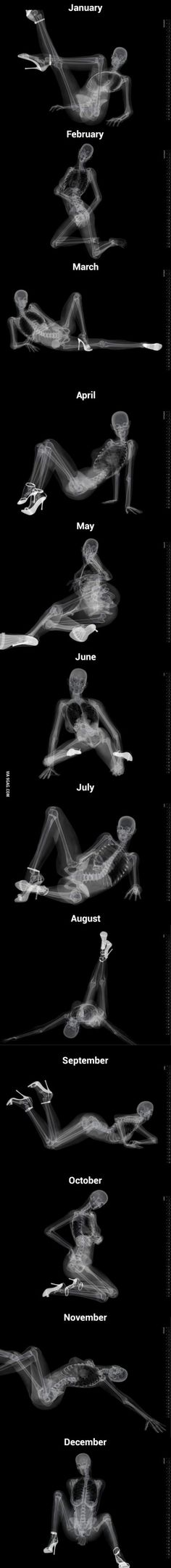 Funny pictures about X-Ray Pinup Calendar. Oh, and cool pics about X-Ray Pinup Calendar. Also, X-Ray Pinup Calendar. Medical Humor, Nurse Humor, Paramedic Humor, Rad Tech, Ap Art, Skull And Bones, Skull Art, Creepy, Drawing Reference