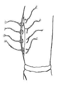 Figure 4: the leg opening