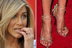 10 Celebs Who Have Shockingly Ugly Feet