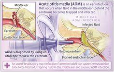 Ear Infection, Bacterial Infection, Ear Anatomy, Otitis Media, Middle Ear, American Academy Of Pediatrics, Pediatric Nursing, Medical School, Ear Health