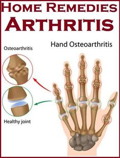 Home Remedies for Arthritis by kjsbutterflies