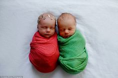 Newborn Photoshoot Captures Twins' Final Moments Together Before One Passed Away – Crazyhippo