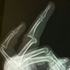 how to fix a dislocated middle finger