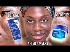 I USED VASELINE/CERAVE HEALING OINTMENT ON MY FACE EVERYDAY FOR 4 WEEKS IN SKINCARE - YouTube