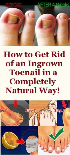 HOW TO GET RID OF AN INGROWN TOENAIL IN A COMPLETELY NATURAL WAY!