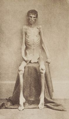This chilling picture of an unknown Union soldier who survived the Andersonville prison camp during the US Civil War highlights the atrocities committed at Confederate military prisons in the 1860s. Built in 1864, the prison housed more than 45,000 Union soldiers, 13,000 of whom died due to disease, poor sanitation, malnutrition and overcrowding.