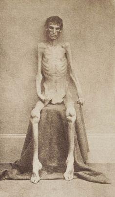 Cette photo effrayante est celle d'un soldat inconnu de l'Union, survivant du camp de prisonnier d'Andersonville pendant la Guerre de Sécession. Elle révèle les atrocités commises dans les prisons par les troupes confédérées pendant les années 1860. Construite en 1864, plus de 45 000 soldats y furent emprisonnés, dont 13 000 morts à cause des maladies, des mauvaises conditions sanitaires, de malnutrition et de surpopulation.