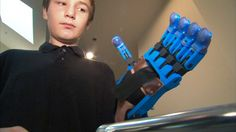 Dawson Riverman can use his left hand thanks to a 3D-printed prosthetic