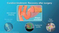 Pancreatic Cancer Surgery and Adjuvant Treatment
