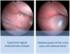 Vaginal endometriosis is classified as superficial and deep. Superficial vaginal endometriotic implants are usually located in the vaginal fornix and have no association with DIE of the recto-vaginal septum. Deep vaginal endometriosis is more common; it is usually associated with endometriosis of the recto-vaginal septum and appears as nodule or polyp in the posterior vaginal fornix between the insertion of the uterosacral ligaments