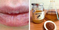 rimedio labbra secche