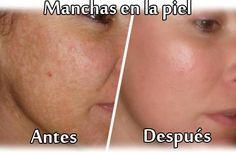 Beneficios del perejil para poder quitar las pecas y manchas en nuestra piel