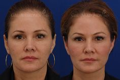 Facial fillers before and after photos cheek fillers under eye filler upper eyelid filler Cheek Fillers, Facial Fillers, Eyelid Lift, Brow Lift, Liquid Facelift, Under Eye Fillers, Non Surgical Facelift, Facial Rejuvenation, Rhinoplasty