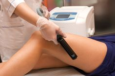 Laser Stretch Mark Removal – How Does It Compare To Creams