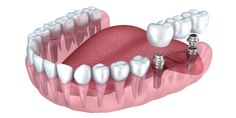 The research report on Intramucosal Implants Market is segmented by Product Type by End Users and by Region - Size, Share, Outlook, and Opportunity Analysis, 2018 – 2026 Dental Implant Surgery, Oral Surgery, Dental Images, Root Canal Treatment, Dental Cosmetics, Emergency Dentist, Dental Bridge, Pediatric Dentist, Best Dentist