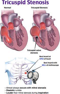 Rosh Review - Tricuspid stenosis - cardio