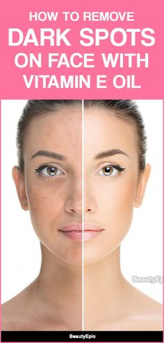Vitamin E Oil for Dark Spots on Face