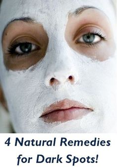 4 Natural Remedies for Dark Spots!