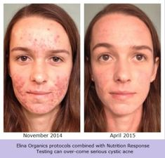 Image result for asea before & after