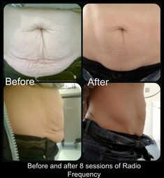 Before And After 4 Treatments Ultrasonic Cavitation Fat