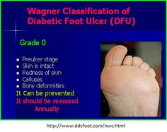 Diabetic Foot Ulcer Wagner Classification | Grade 1 is a superficial ulcer involving the full skin thickness but ...