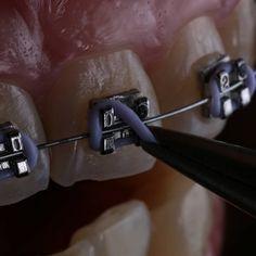 Chivalrous Dental Care Tips Receding Gums Dental World, Dental Life, Dental Art, Dental Braces, Teeth Braces, Cute Braces Colors, Happy Dental, Dental Photos, Braces Tips