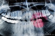 Photo about Painful teeth concept - Panoramic dental X-Ray, teeth and head radiography. Image of dental, clinic, panoramic - 107226169 Dental, Teeth, Concept, Abstract, Artwork, Image, Summary, Work Of Art, Auguste Rodin Artwork
