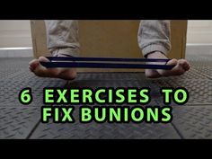 Bunion Treatment - Stretches to Help Avoid Bunion Surgery 3/3 - YouTube