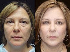 Bloomington IL eyelid surgery and non-surgical procedures.  #juvederm #eyelift #blepharoplasty #eyelid eyelid-surgery