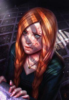 Lana Lucy McKinley Mathewson nach ihren Kampf gegen Loki, bei dem sie ein Auge verlor