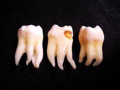 Real human teeth - photo#15