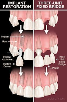 Diagram showing how dental implants are placed. Dental implants consist of a titanium fixture (the screw part), an abutment (connecting piece) and the implant crown (tooth). ⁣ ⁣ This image shows how they compare to traditional fixed bridge work to replace Dental Facts, Dental Humor, Dental Hygiene, Dental World, Dental Life, Implant Dentistry, Cosmetic Dentistry, Teeth Implants, Dental Implants