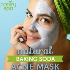 Acne Remedies Baking Soda Acne Face Mask: Acne Remedies to Clear Pimples Fast! Cystic Acne Remedies, Cystic Acne Treatment, Acne Face Mask, Acne Skin, Acne Scars, How To Clear Pimples, Baking Soda For Acne, Greasy Skin, How To Treat Acne