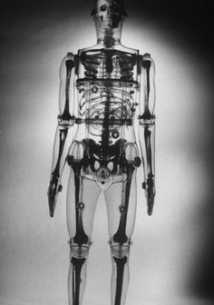 A plastic skeleton showing the spots of body most likely to be affected by radioactive fallout in 1961.