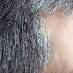 Gray Hair Cure: Why Does Hair Turn Grey
