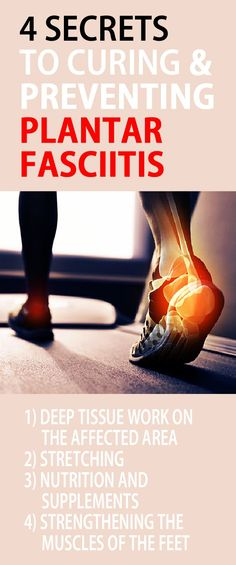 4 secrets to curing PLANTAR FASCIITIS. This is how you can cure plantar fasciitis in 1 week! #plantarfasciitis #heelpain #archpain