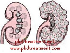 It is likely for PKD patients to have normal kidney size, although PKD cause kidney growth easily. Enlarged kidney needs to be removed, if not, it will oppress surrounding internal organs and impair their function, which can cause further health tissues. For PKD patients with kidney in normal size,their illness is brought under control easier and if they can take effective treatment timely, they can live as well as they did before.