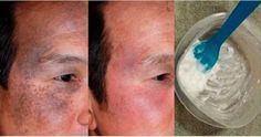Un homme a découvert et testé un soin magique pour une peau plus saine et plus jeune