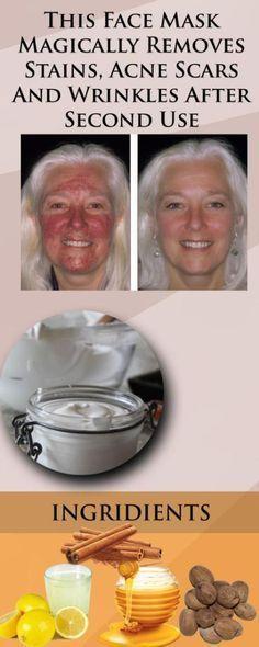 Ansiktsmask mot ärr